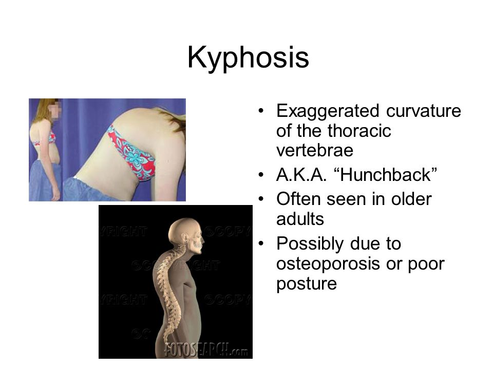Kyphosis Exaggerated curvature of the thoracic vertebrae A.K.A.