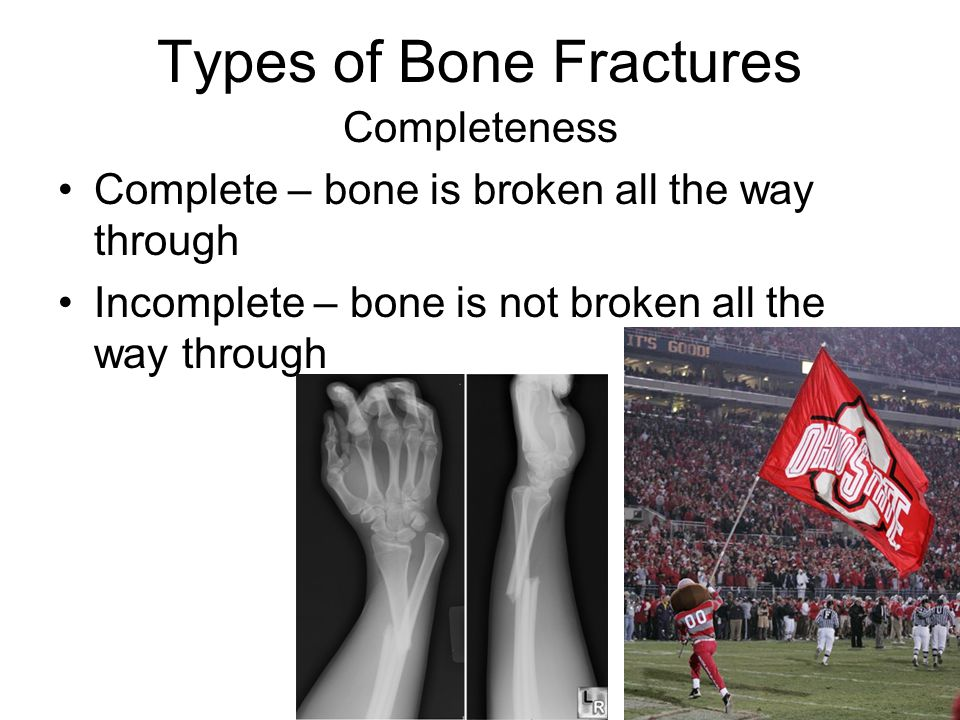 Types of Bone Fractures Completeness Complete – bone is broken all the way through Incomplete – bone is not broken all the way through