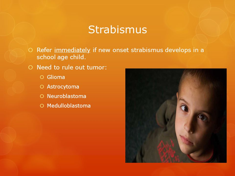  Refer immediately if new onset strabismus develops in a school age child.  Need to rule out tumor:  Glioma  Astrocytoma  Neuroblastoma  Medullo