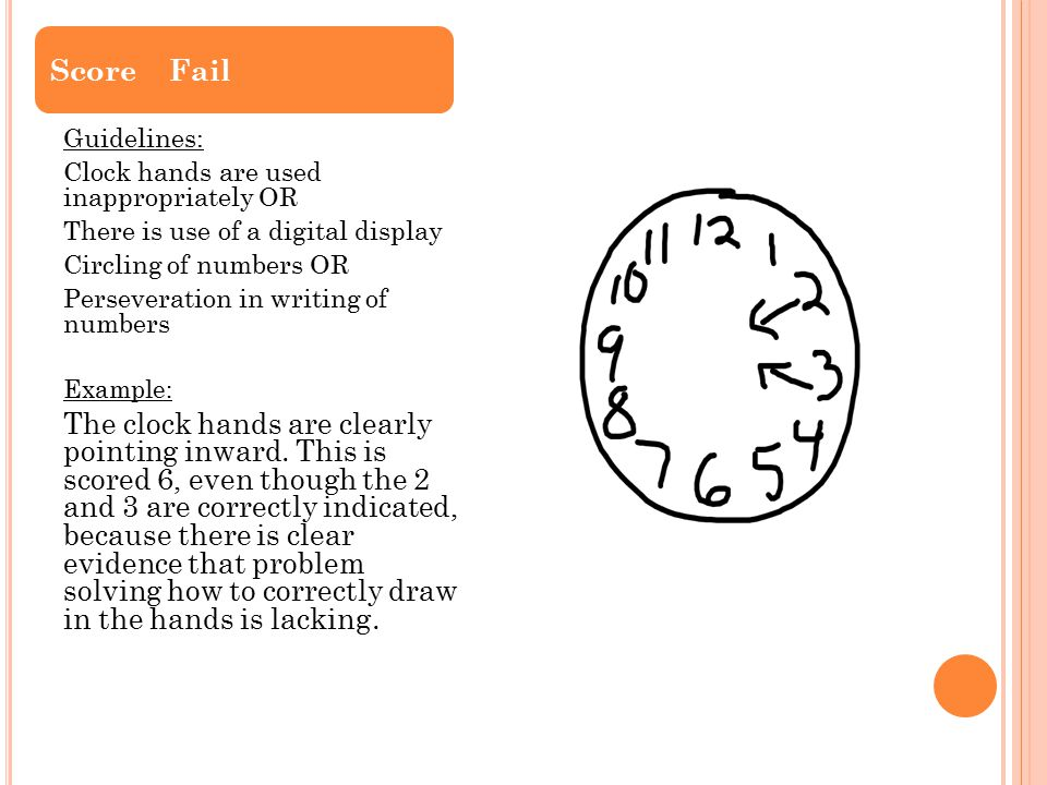 Guidelines: Clock hands are used inappropriately OR There is use of a digital display Circling of numbers OR Perseveration in writing of numbers Examp