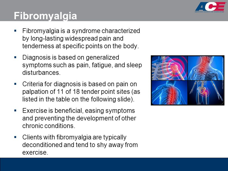 Fibromyalgia  Fibromyalgia is a syndrome characterized by long-lasting widespread pain and tenderness at specific points on the body.  Diagnosis is