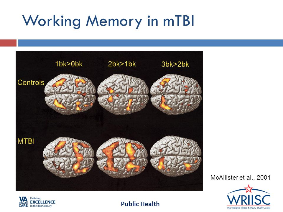 Public Health Longitudinal fMRI in Severe TBI  Increased activation observed after 6-month evolution in TBI patients during the 3-back condition.