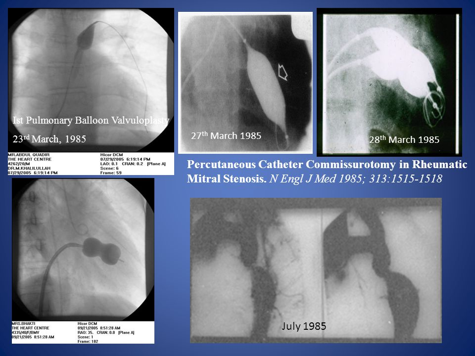 Ist Pulmonary Balloon Valvuloplasty 23 rd March, 1985 Percutaneous Catheter Commissurotomy in Rheumatic Mitral Stenosis.