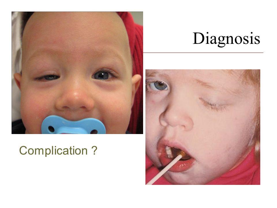 Diagnosis Complication ?
