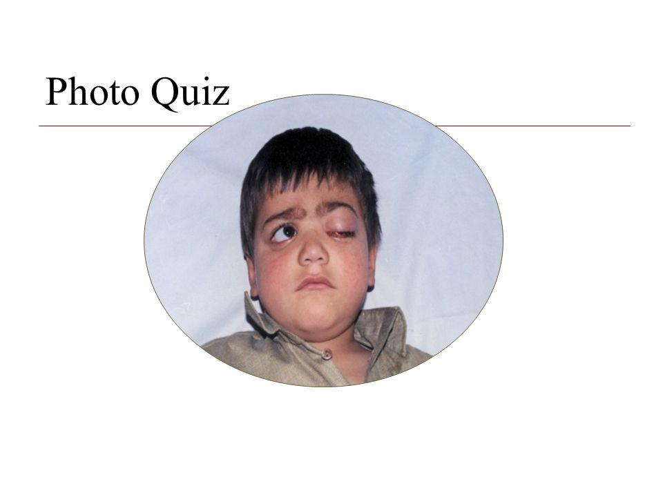 Photo Quiz