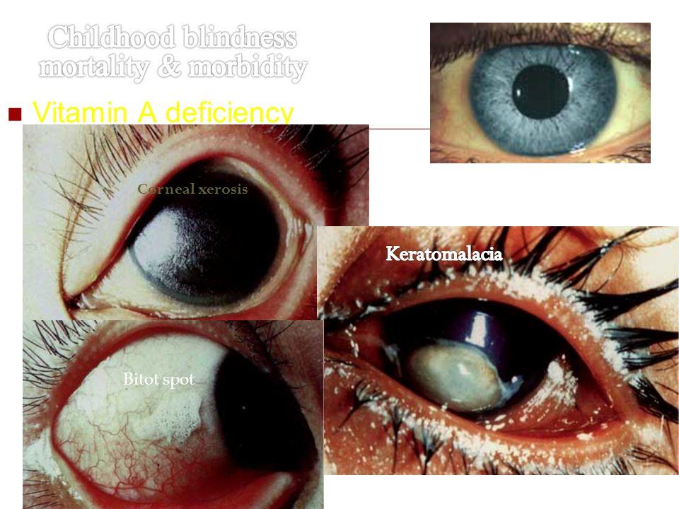 Vitamin A deficiency Corneal xerosis Bitot spot Normal