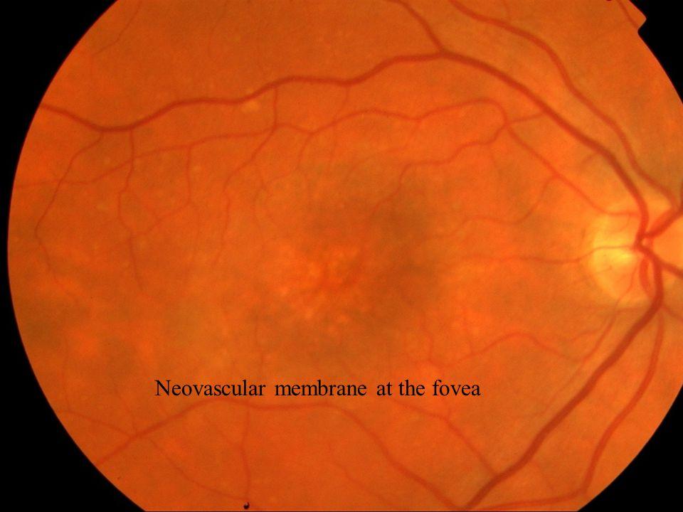 Neovascular membrane at the fovea