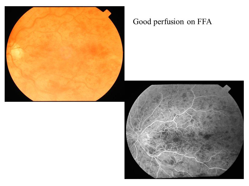 Good perfusion on FFA