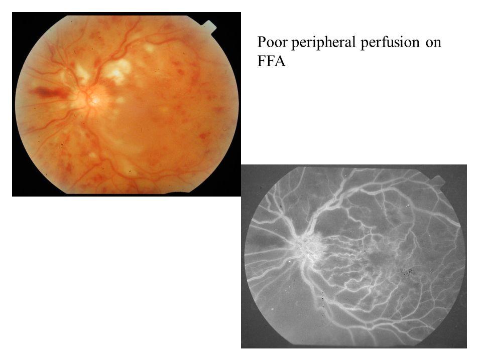 Poor peripheral perfusion on FFA