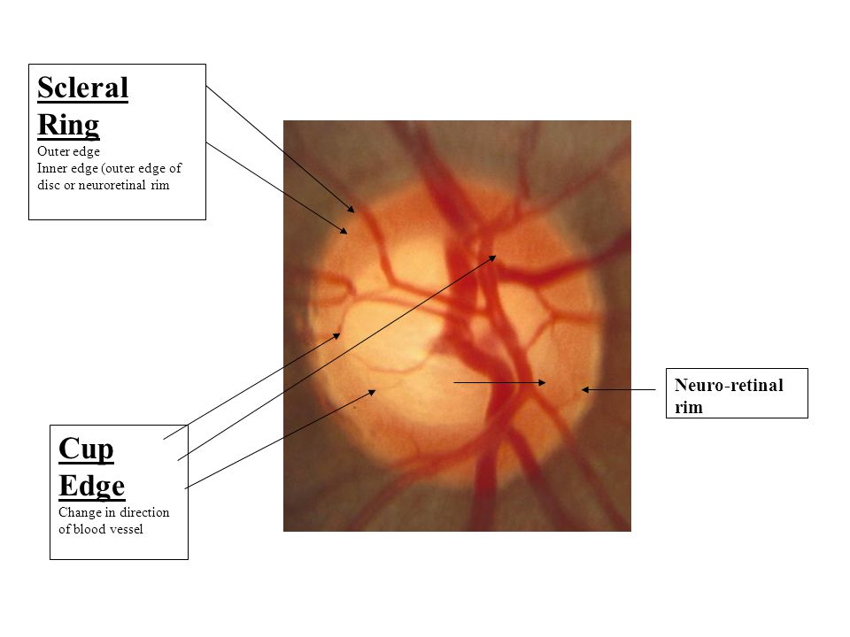Scleral Ring Outer edge Inner edge (outer edge of disc or neuroretinal rim Cup Edge Change in direction of blood vessel Neuro-retinal rim