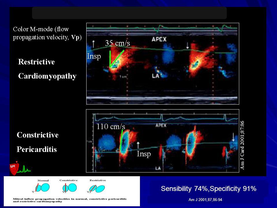 Sensibility 74%,Specificity 91% Am J 2001,87,86-94