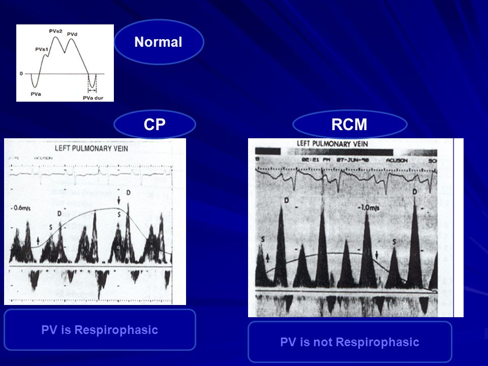 RCMCP PV is Respirophasic PV is not Respirophasic Normal