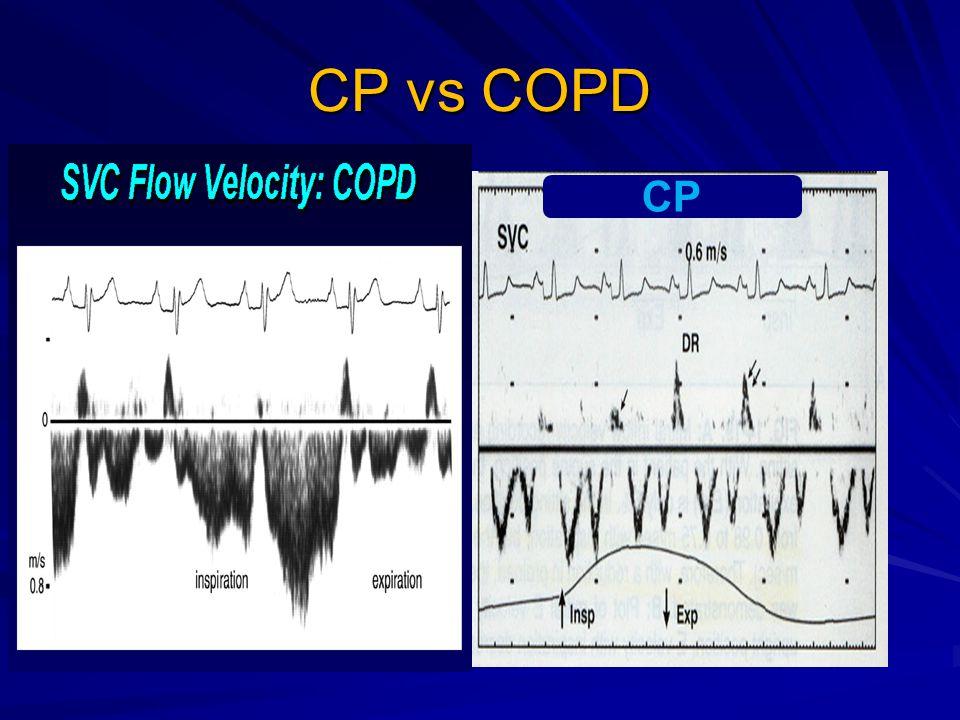 CP vs COPD CP