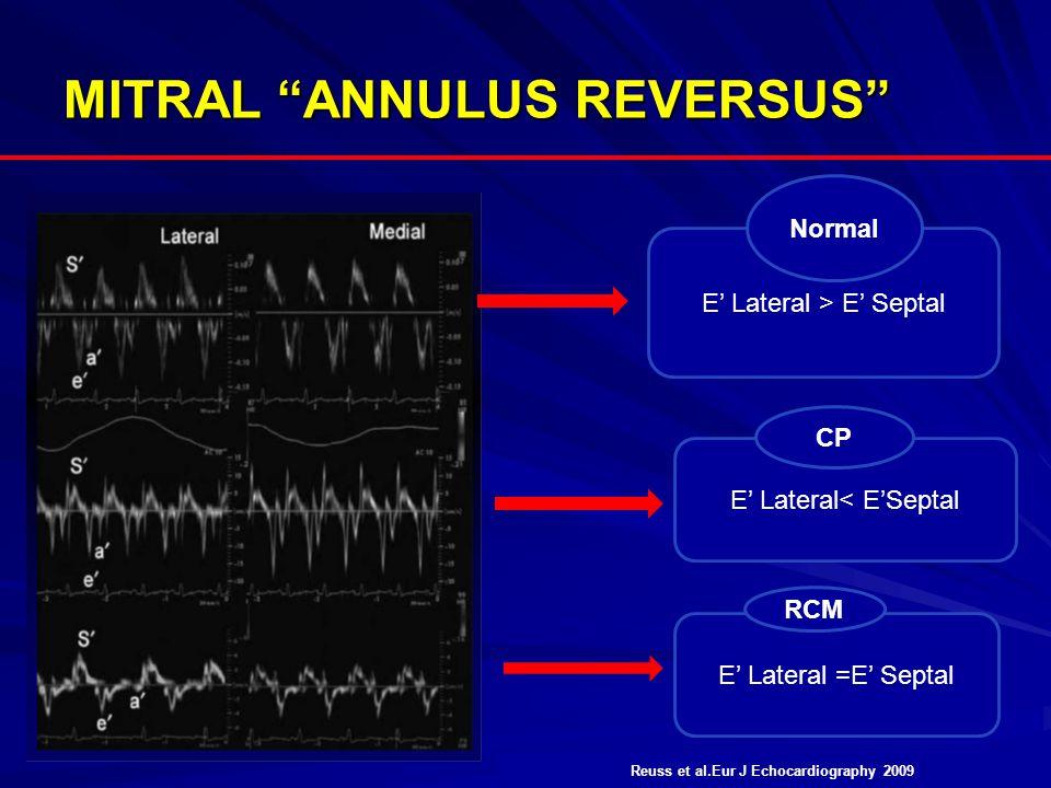 """MITRAL """"ANNULUS REVERSUS"""" E' Lateral > E' Septal E' Lateral< E'Septal E' Lateral =E' Septal Normal CP RCM Reuss et al.Eur J Echocardiography 2009"""