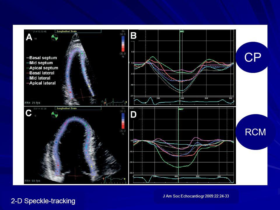 2-D Speckle-tracking CP RCM J Am Soc Echocardiogr 2009:22:24-33