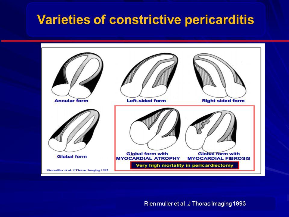 Varieties of constrictive pericarditis Rien muller et al.J Thorac Imaging 1993