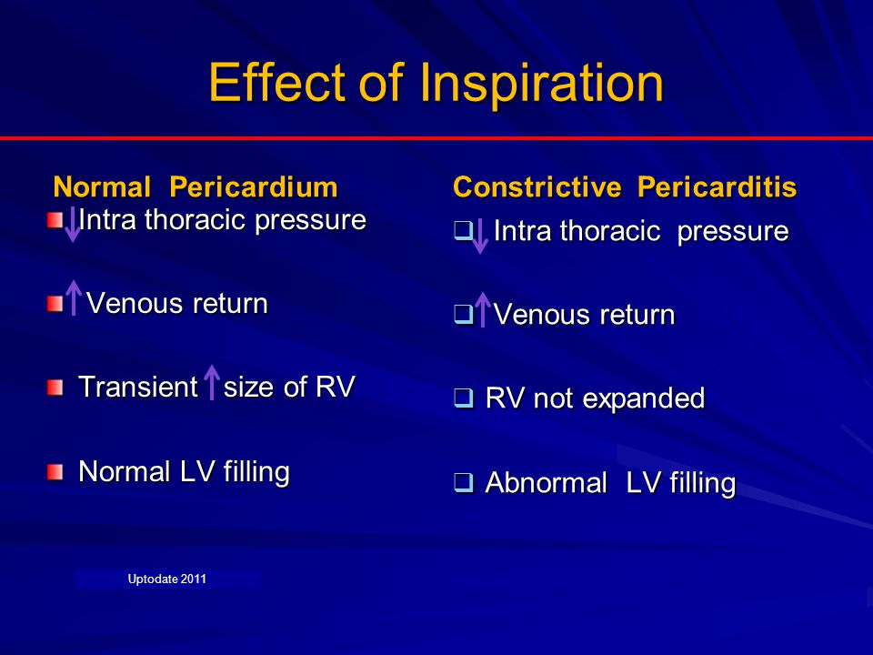 Effect of Inspiration Normal Pericardium Intra thoracic pressure Venous return Venous return Transient size of RV Normal LV filling Constrictive Peric
