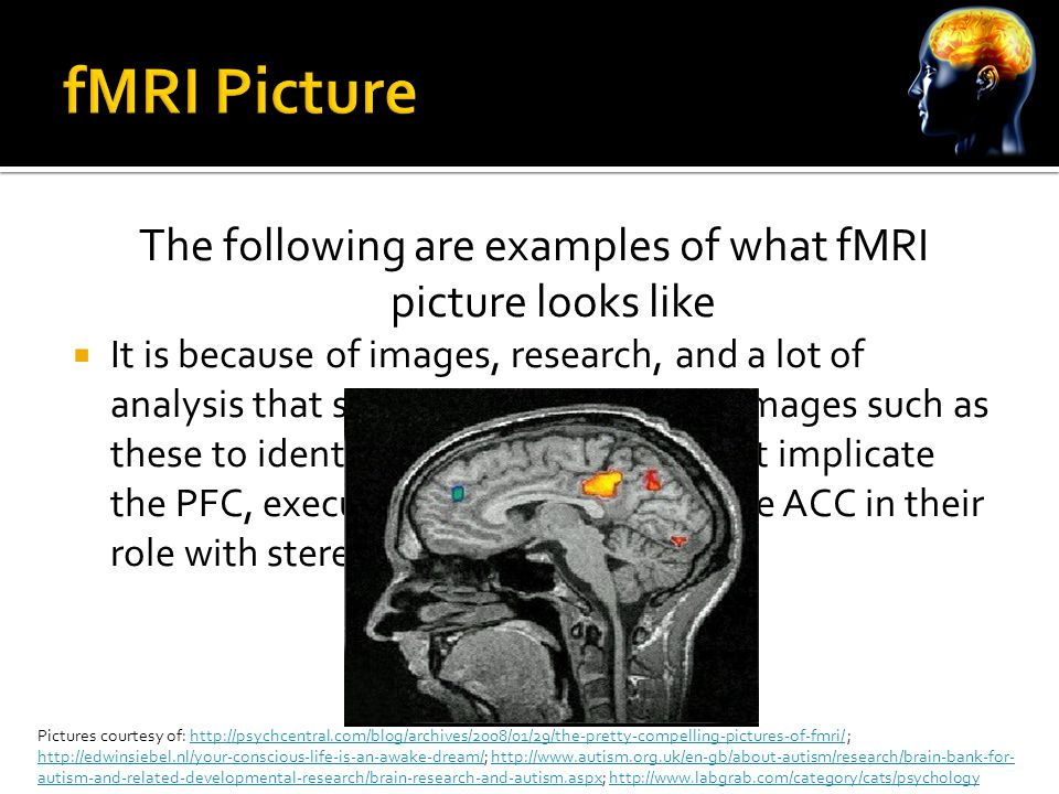 The following are examples of what fMRI picture looks like  It is because of images, research, and a lot of analysis that scientist are able to use images such as these to identify areas of the brain that implicate the PFC, executive functioning, and the ACC in their role with stereotype threat Pictures courtesy of: http://psychcentral.com/blog/archives/2008/01/29/the-pretty-compelling-pictures-of-fmri/ ; http://edwinsiebel.nl/your-conscious-life-is-an-awake-dream/; http://www.autism.org.uk/en-gb/about-autism/research/brain-bank-for- autism-and-related-developmental-research/brain-research-and-autism.aspx; http://www.labgrab.com/category/cats/psychologyhttp://psychcentral.com/blog/archives/2008/01/29/the-pretty-compelling-pictures-of-fmri/ http://edwinsiebel.nl/your-conscious-life-is-an-awake-dream/http://www.autism.org.uk/en-gb/about-autism/research/brain-bank-for- autism-and-related-developmental-research/brain-research-and-autism.aspxhttp://www.labgrab.com/category/cats/psychology