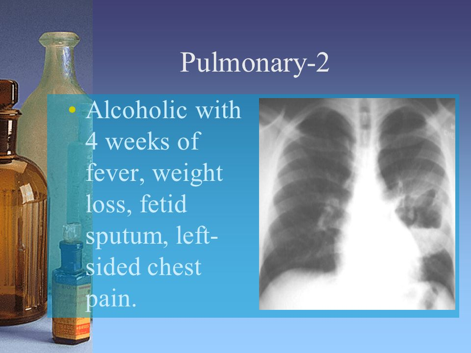 Pulmonary-2 Alcoholic with 4 weeks of fever, weight loss, fetid sputum, left- sided chest pain.