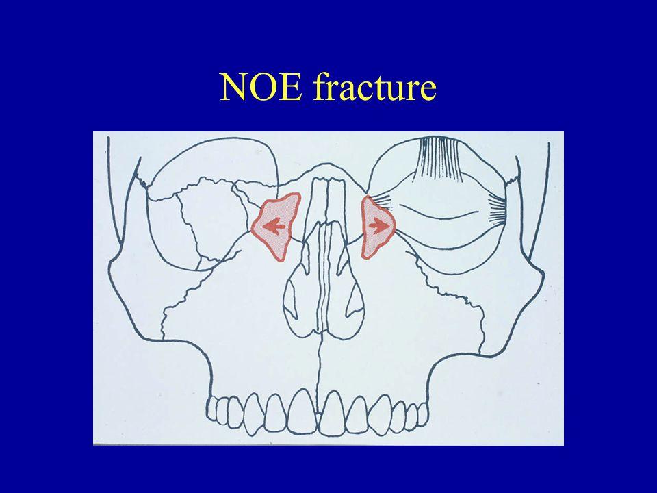 NOE fracture