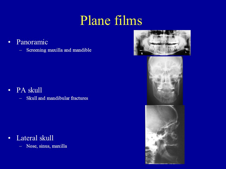 Plane films continued Waters view –Maxilla, maxillary sinus Submental vertex –Zygomztic arch