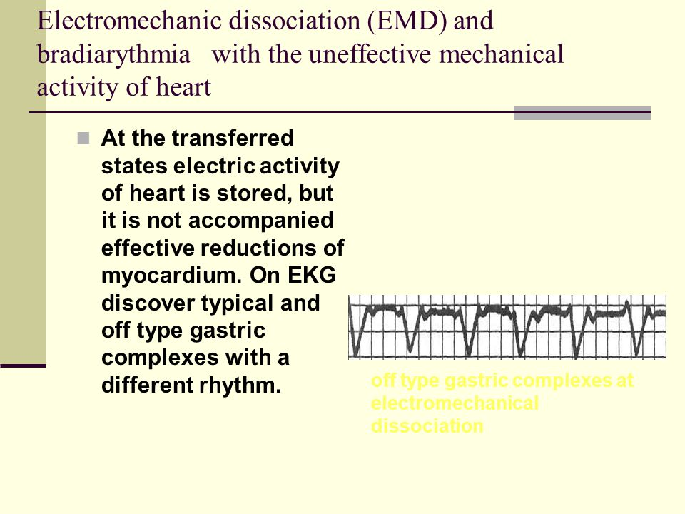 Electromechanic dissociation (EMD) and bradiarythmia with the uneffective mechanical activity of heart At the transferred states electric activity of