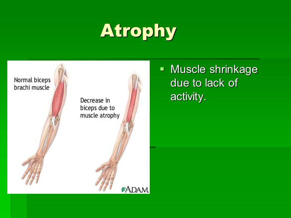 Atrophy Atrophy  Muscle shrinkage due to lack of activity.