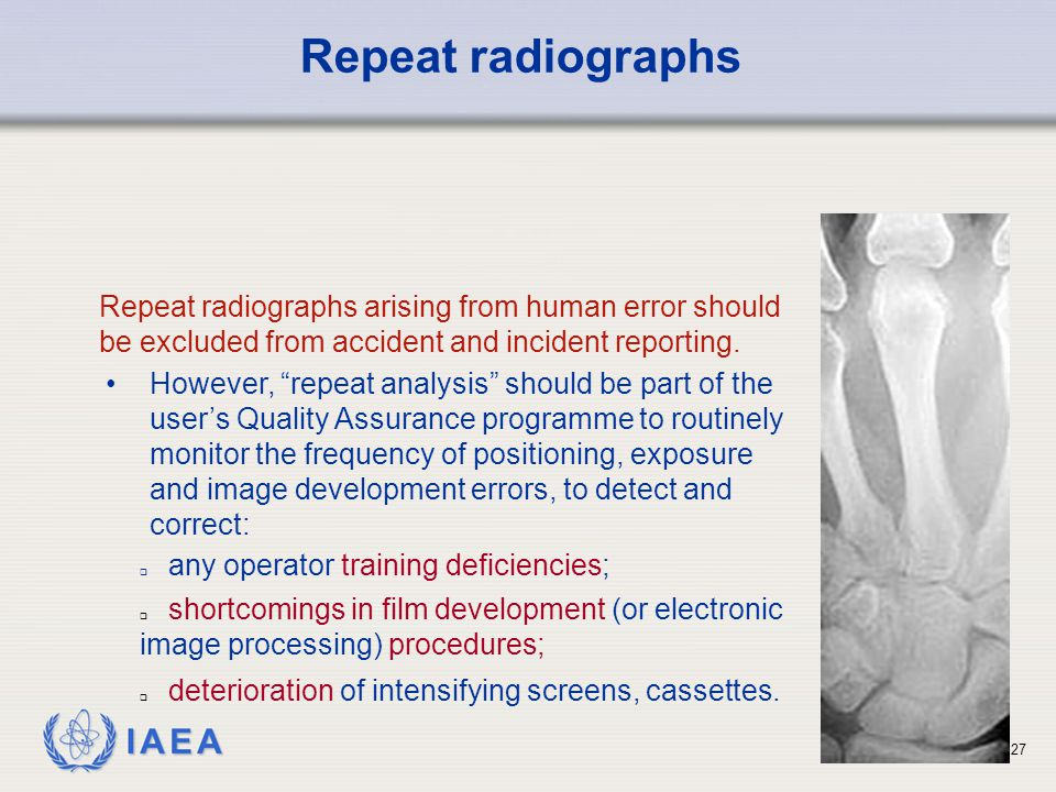 IAEA 27  any operator training deficiencies; Repeat radiographs arising from human error should be excluded from accident and incident reporting.