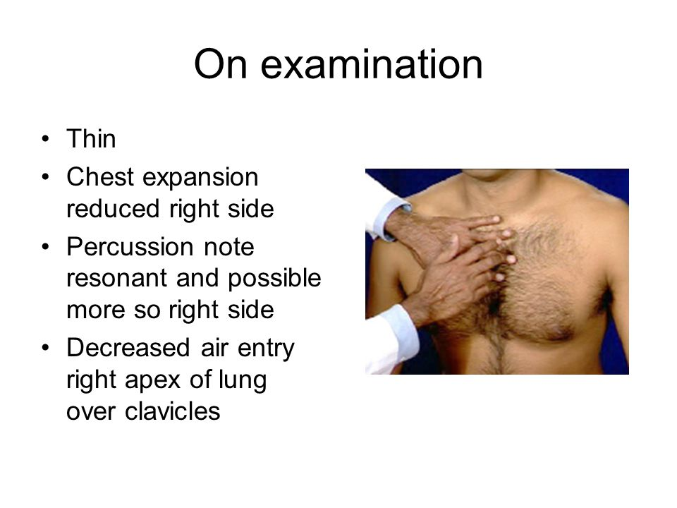 On examination Thin Chest expansion reduced right side Percussion note resonant and possible more so right side Decreased air entry right apex of lung