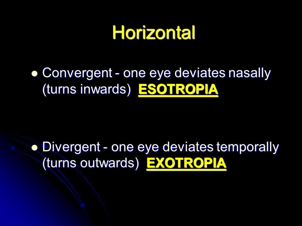 Horizontal Convergent - one eye deviates nasally (turns inwards) ESOTROPIA Convergent - one eye deviates nasally (turns inwards) ESOTROPIA Divergent -