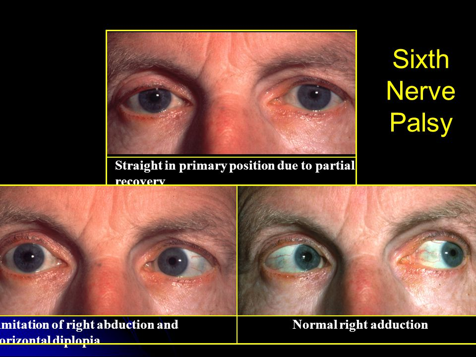 Straight in primary position due to partial recovery Limitation of right abduction and horizontal diplopia Normal right adduction Sixth Nerve Palsy