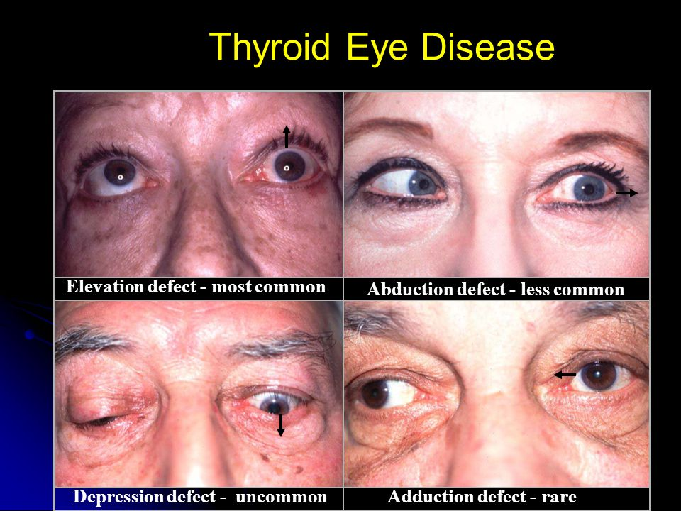 Elevation defect - most common Abduction defect - less common Depression defect - uncommonAdduction defect - rare Thyroid Eye Disease