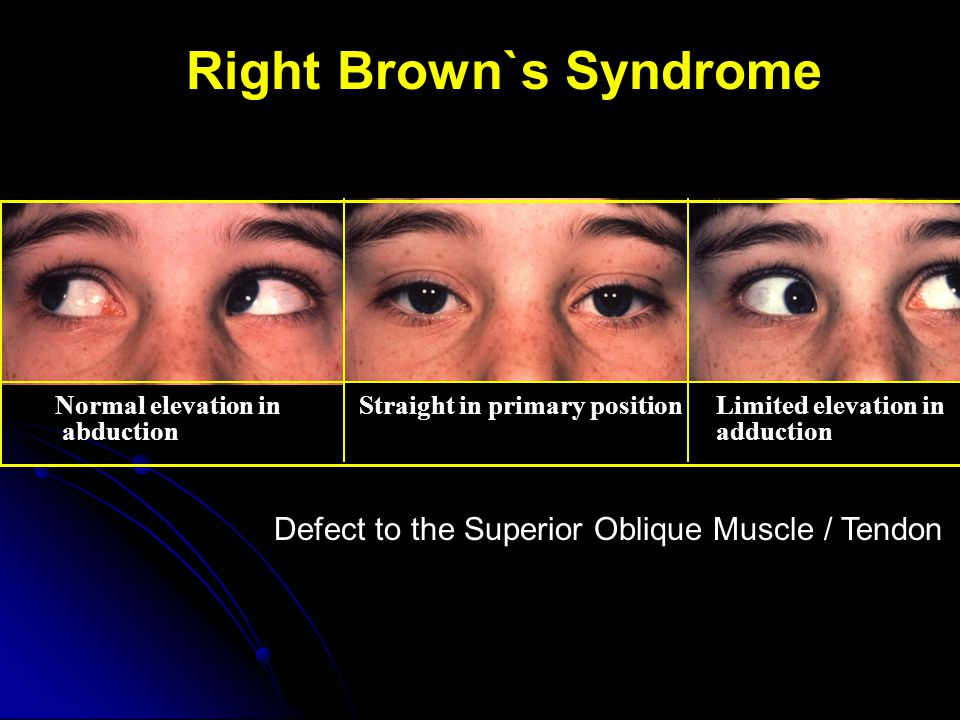 Right Brown`s Syndrome Normal elevation in abduction Straight in primary positionLimited elevation in adduction Defect to the Superior Oblique Muscle