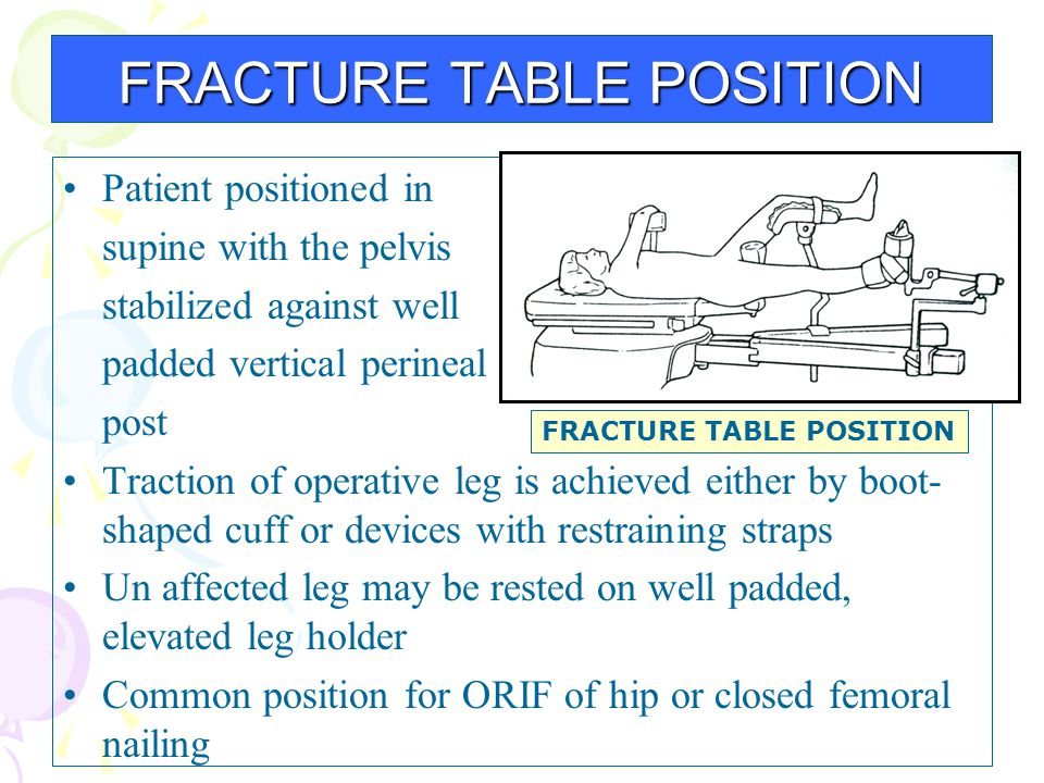 Patient positioned in supine with the pelvis stabilized against well padded vertical perineal post Traction of operative leg is achieved either by boo