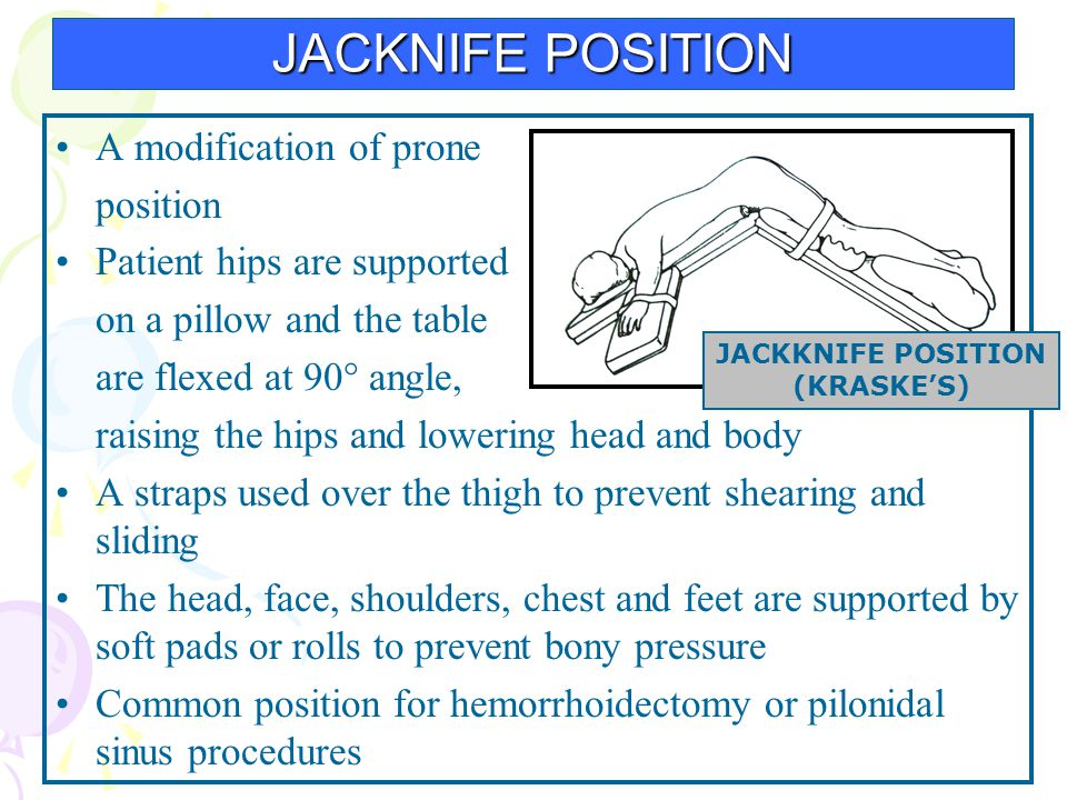 JACKNIFE POSITION A modification of prone position Patient hips are supported on a pillow and the table are flexed at 90° angle, raising the hips and