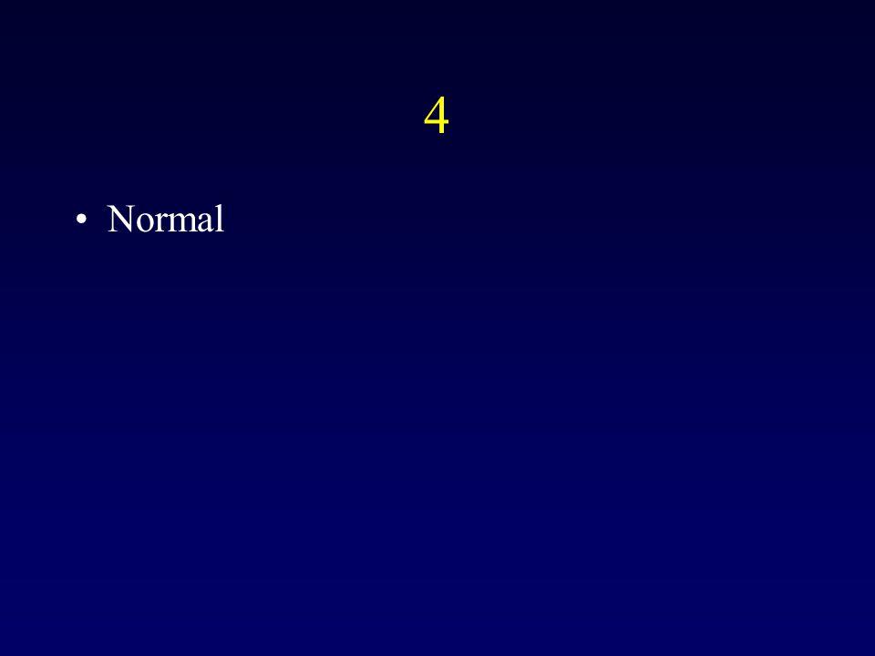4 Normal