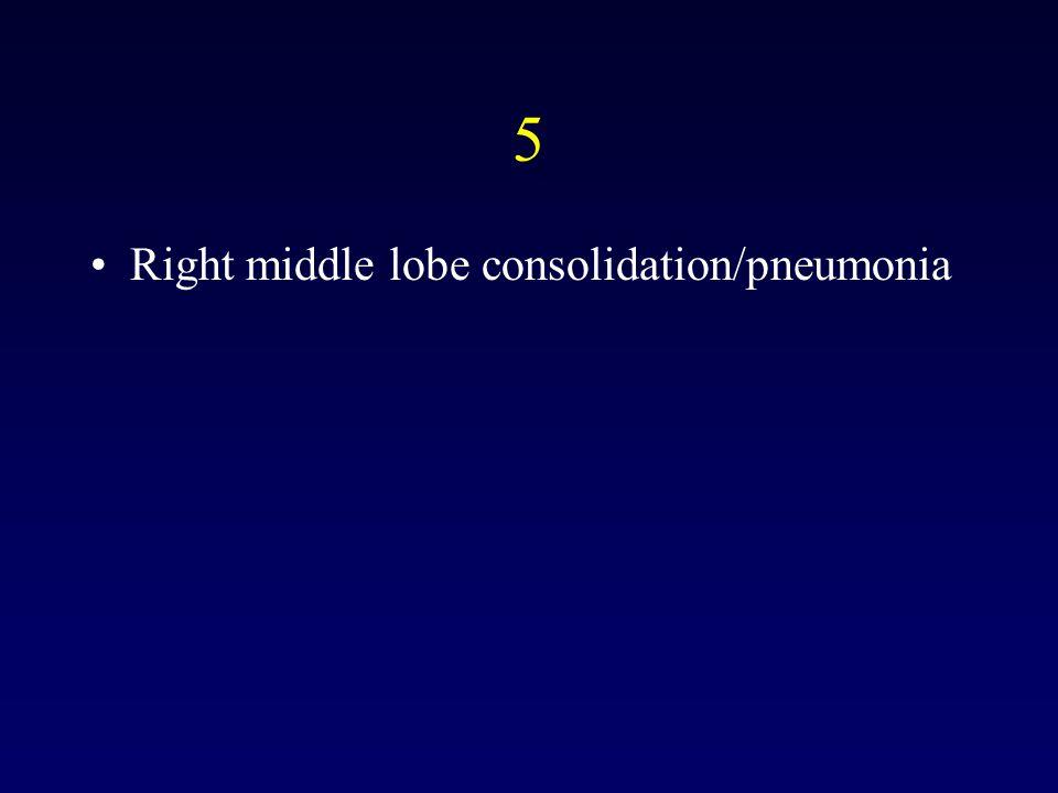 5 Right middle lobe consolidation/pneumonia