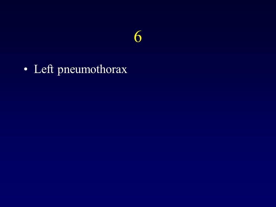 6 Left pneumothorax
