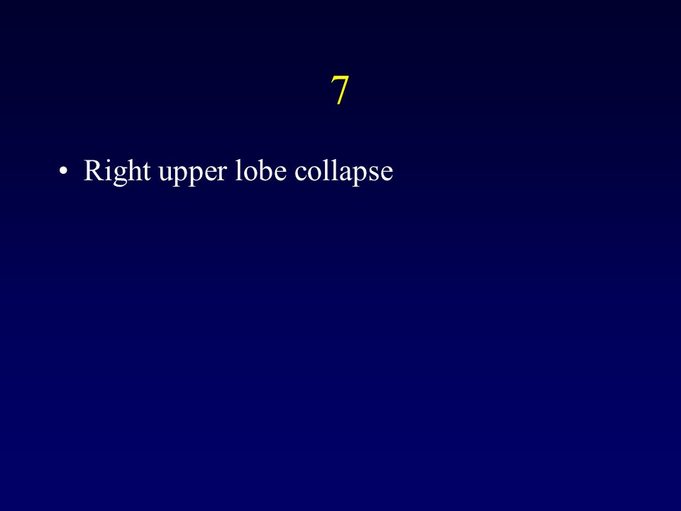 7 Right upper lobe collapse