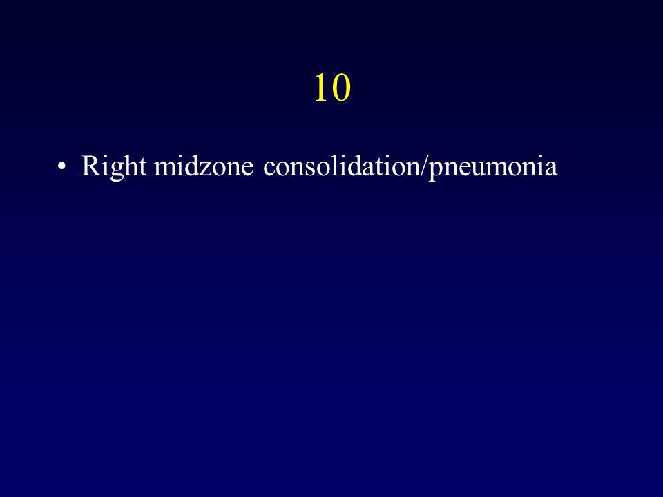 10 Right midzone consolidation/pneumonia
