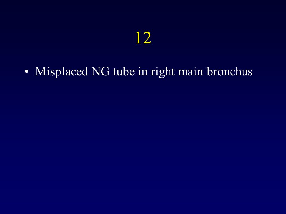 12 Misplaced NG tube in right main bronchus