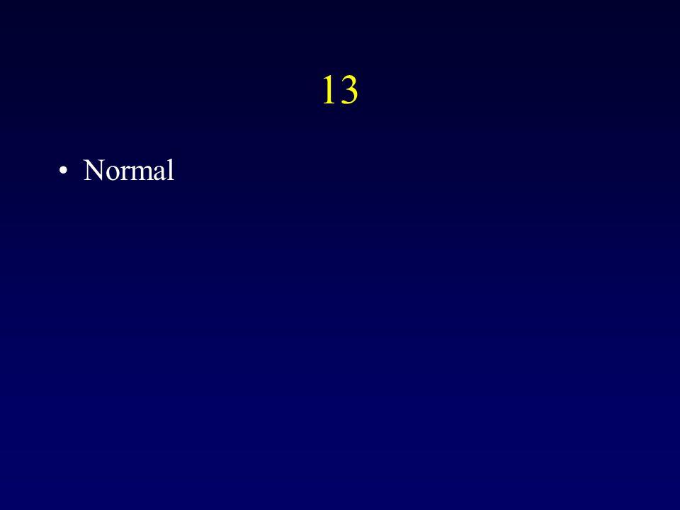 13 Normal