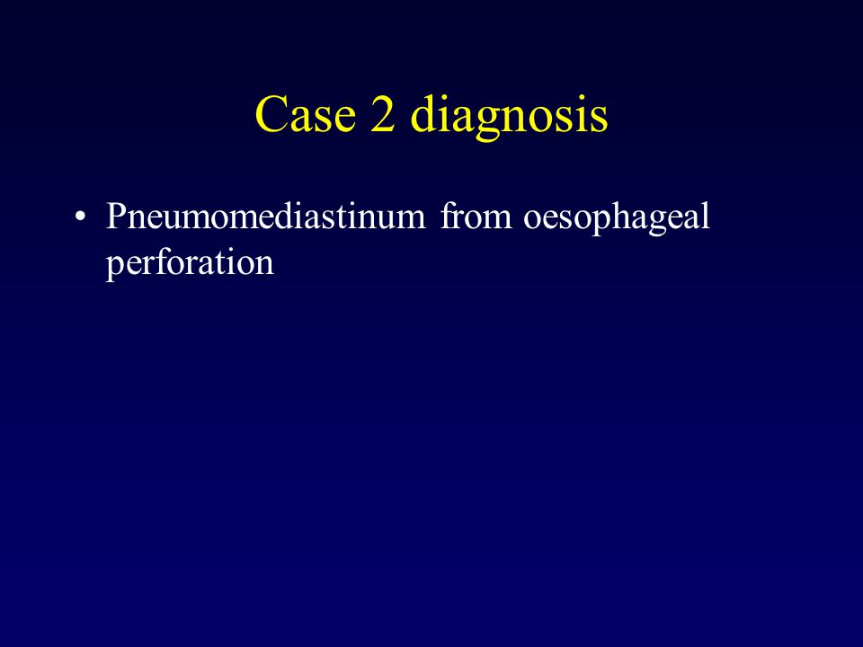 Case 2 diagnosis Pneumomediastinum from oesophageal perforation