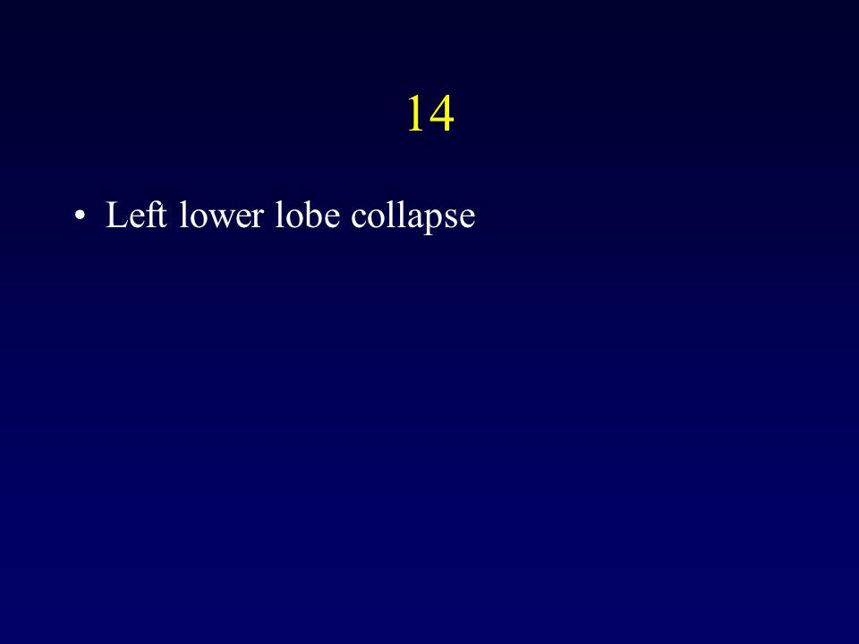 14 Left lower lobe collapse