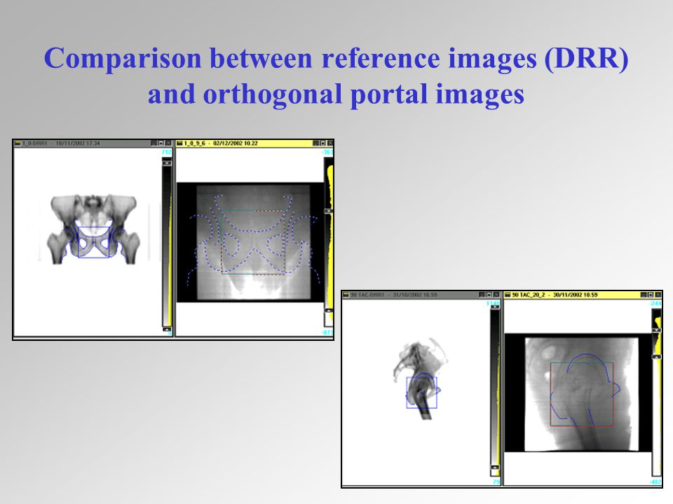 13 Comparison between reference images (DRR) and orthogonal portal images