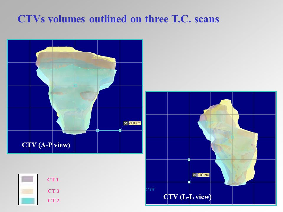 15 CTVs volumes outlined on three T.C. scans CT 1 CT 3 CT 2 CTV (L-L view) CTV (A-P view)