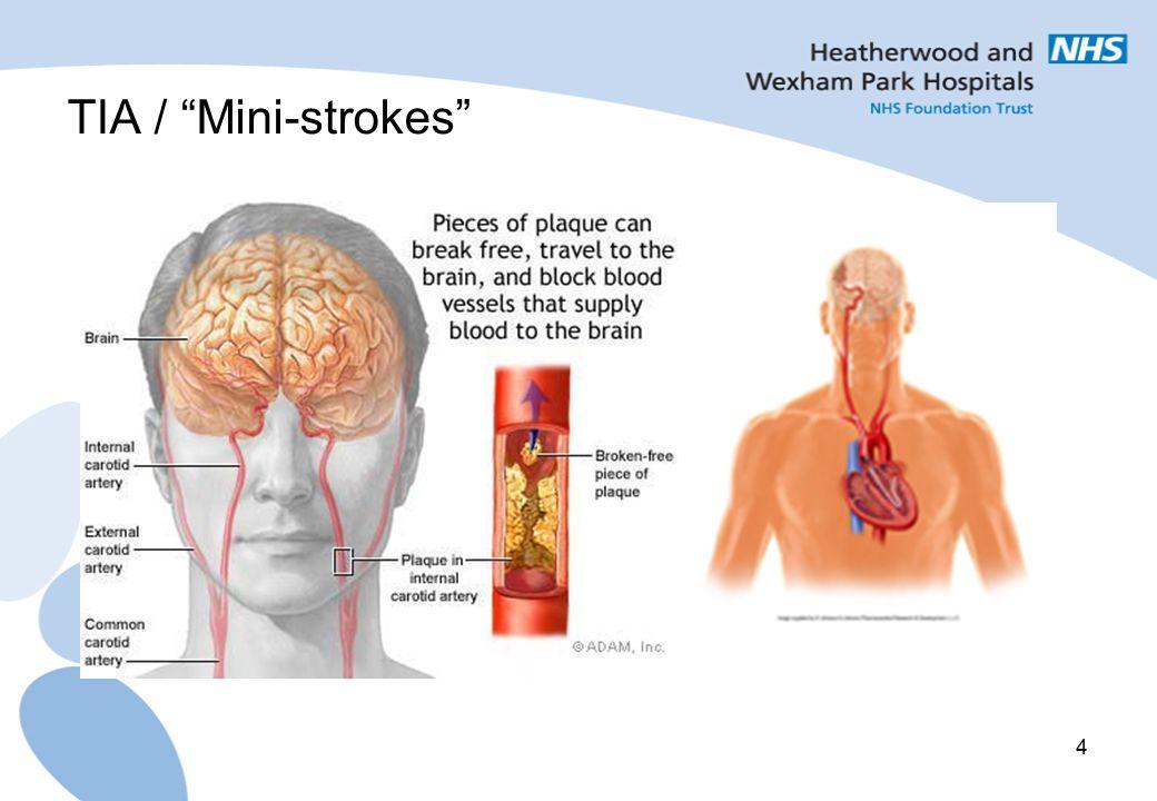 """4 TIA / """"Mini-strokes"""""""