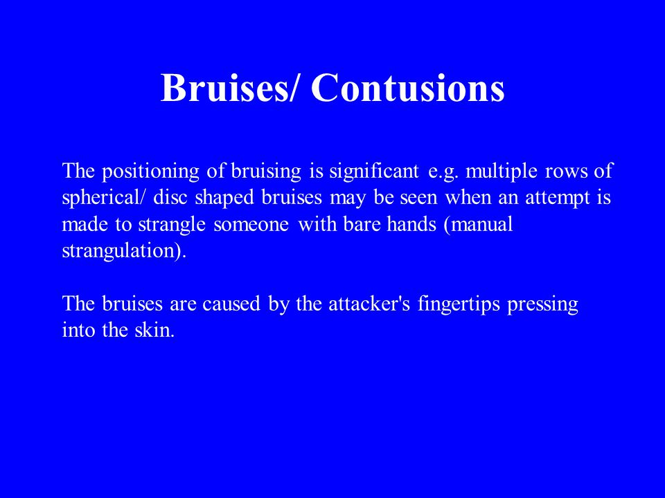 The positioning of bruising is significant e.g. multiple rows of spherical/ disc shaped bruises may be seen when an attempt is made to strangle someon