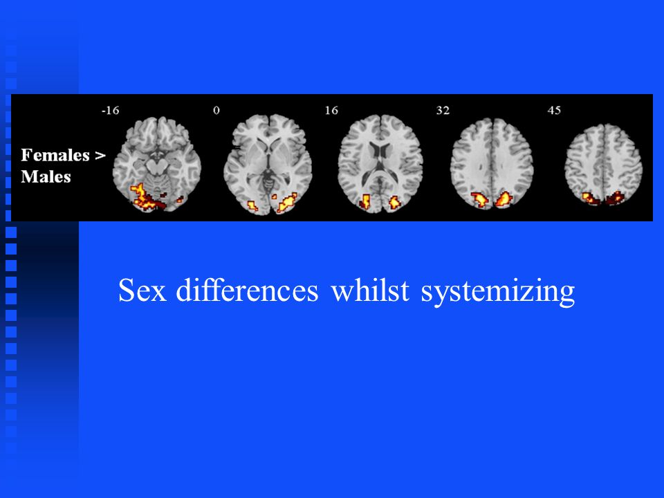 Sex differences whilst systemizing