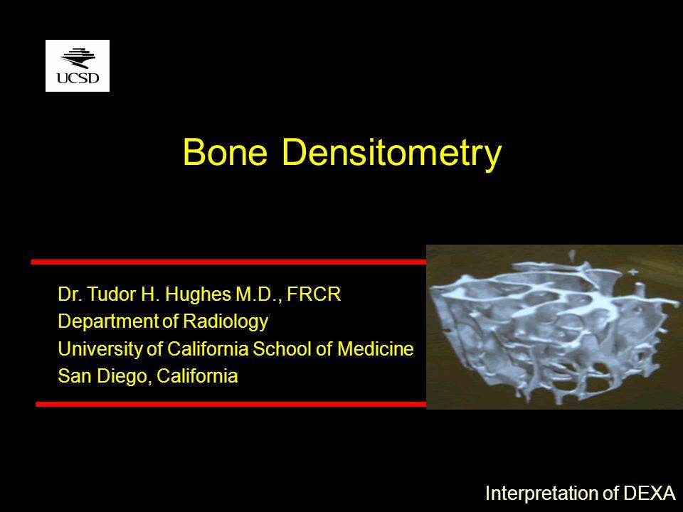 Dr. Tudor H. Hughes M.D., FRCR Department of Radiology University of California School of Medicine San Diego, California Bone Densitometry Interpretat